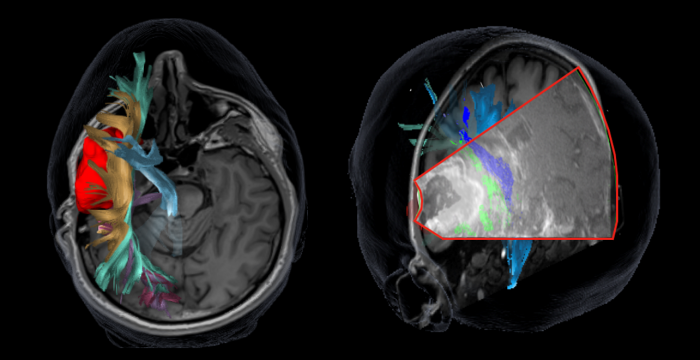 Two images, one an axial MRI slice with colourful DTI imaging superimposed, showing an example tumour in red, and other nerve tracts in blue, yellow, green and purple. The second image is a conronal MRI slice with superimposed colourful DTI, showing nerve tracts which has also had navigated ultrasound fused, showing how the brain appears through ultrasound imaging, including the DTI colours